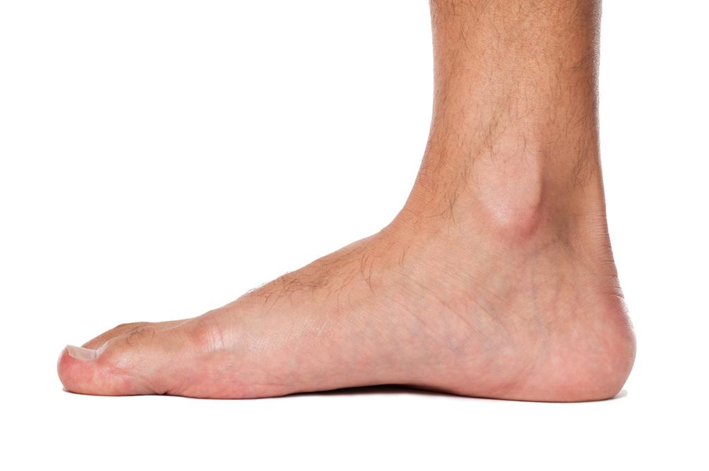 Flat-Feet_03